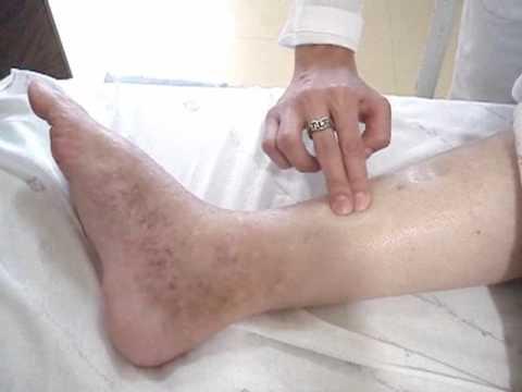 varicoză pe diagnosticarea picioarelor